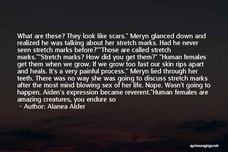 Pain Heals Quotes By Alanea Alder