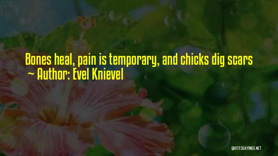 Scars Heal Quotes By Evel Knievel